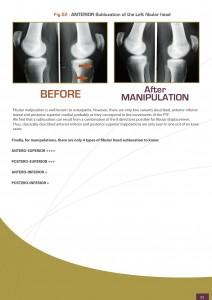 adhesions-fascia-knee
