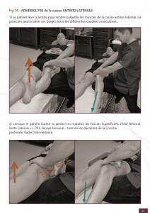 traitement-plica-genou