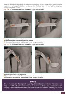 subluxation-head-fibula