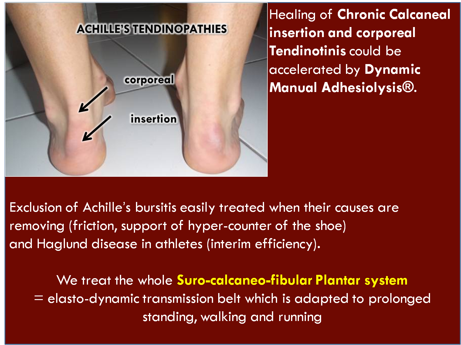 tendinopathies of the achilles heel  manual treatment