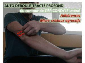 Auto-adhésiolyse des Microcristaux agressifs et du Tendon Commun des épicondyliens latéraux = du pourtour de l'épicondyle latéral