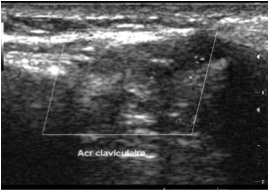 acromio-claviculaire instable