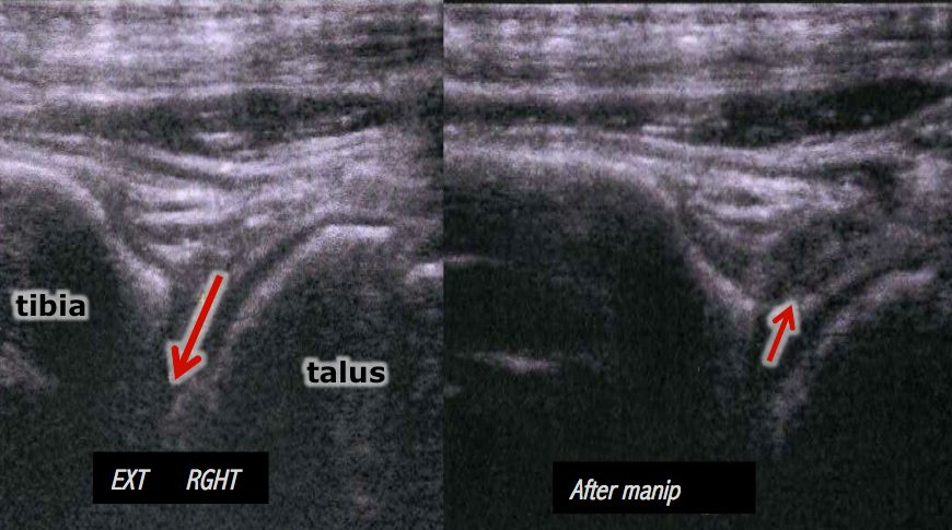 ankle-ultrasonography-osteopathy