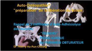 Auto-ostéopathie musculaire du Bassin: 3 techniques