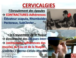 burn out et cervicalgie