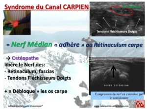 burn out et syndrome canal carpien