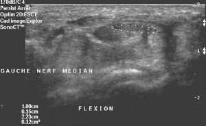 canal-carpien ostéopathie