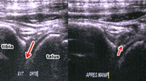 cheville échographie ostéopathie