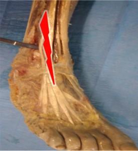 cheville instable et ostéopathie