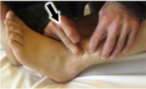 cheville douloureuse instable :osteopathie tibio-fibulaire antéro-inférieure