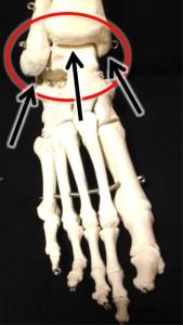 cheville douloureuse : piegeages capsulaires
