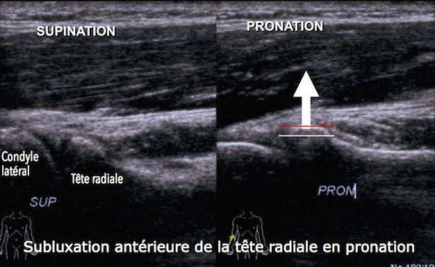 coude-echographie-osteopathie-4
