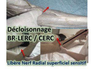 Décloisonnage entre BR-LERC/CERC/EXT DOIGTS-V/EUC +-ANCONÉ