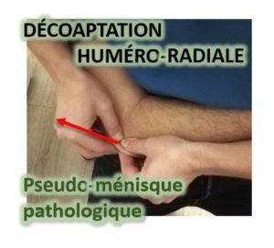 Repli Capsulo-Synovial dans l'interligne Huméro-Ulnaire latérale, qui s'enflamme, s'épaissit, puis devient douloureux