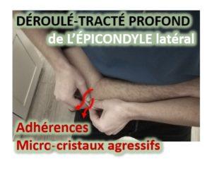 Micro-cristaux agressifs + adhérences Tendon commun épicondylien : Déroulé-Tracté Profond du pourtour de l'épicondyle latéral