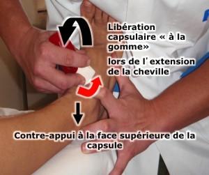 douleur cheville par piégeage capsulaire: Manipulations