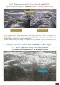 échographie adhérences fascias
