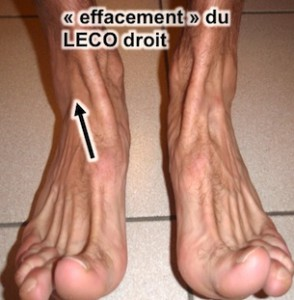 entorse cheville : ostéopathie cou du pied