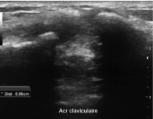 echographie acromio-claviculaire