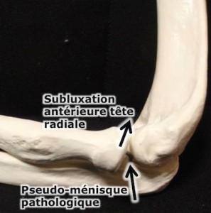 epicondylalgie osteopathie coude
