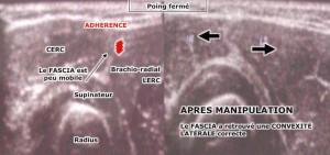 épicondylite-échographie-ostéopathie