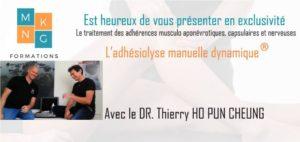 présentation adhésiolyse manuelle dynamique