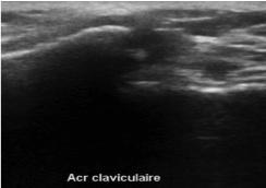 instabilité acromio-claviculaire