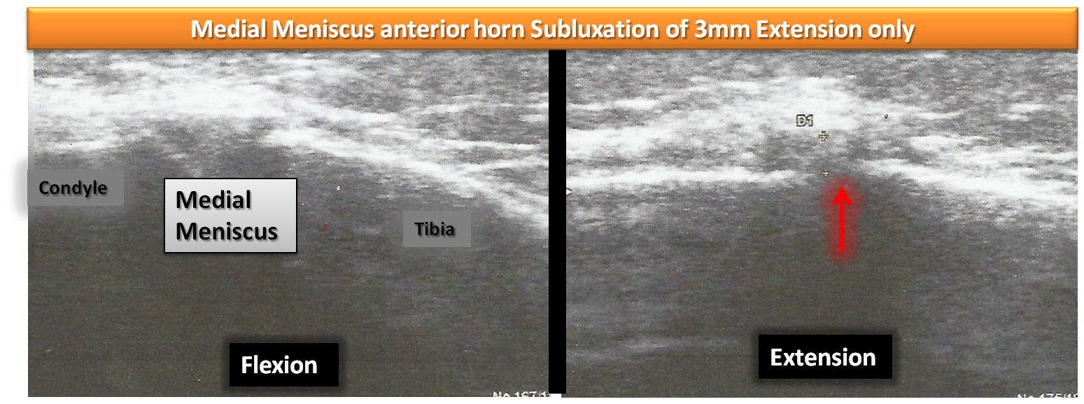 meniscus subluxation osteopathy