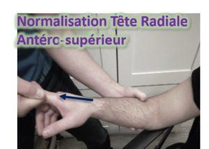 SUBLUXATION de la TÊTE RADIALE : La Décoaptation de l'interligne Huméro-radiale survient habituellement lors des manœuvres de décloisonnage