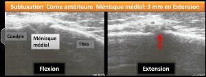 osteopathie subluxation menisque