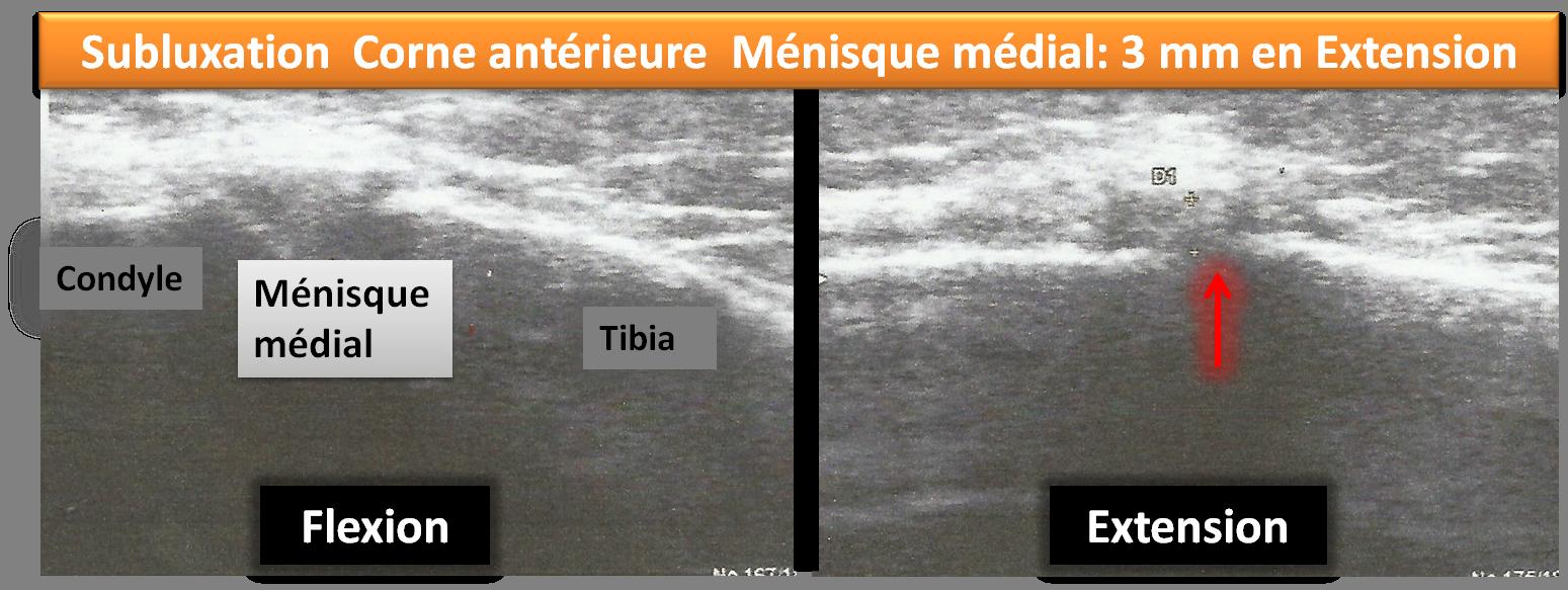 échographie osteopathie subluxation menisque