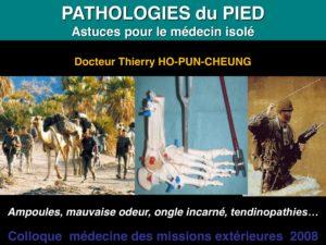 ostéopathie : pathologies pieds et marche