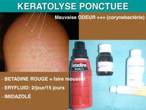 osteopathie keratolyse ponctuée