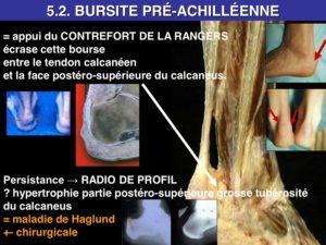osteopathie bursite préachilléenne