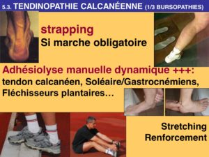 osteopathie tendinopathie calcanéenne