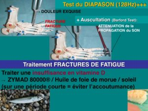 osteopathie fracture pieds