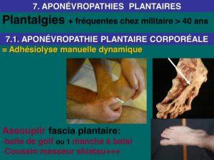 osteopathie fascia plantaire