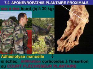 osteopathie aponevrosite plantaire
