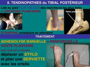 osteopathie tibial posterieur