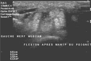 nerf médian ostéopathie