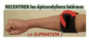 CONTENTION souple du coude= effet antalgique. Recentrer LATÉRALEMENT le groupe musculaire latéral du coude = dans le sens de la SUPINATION