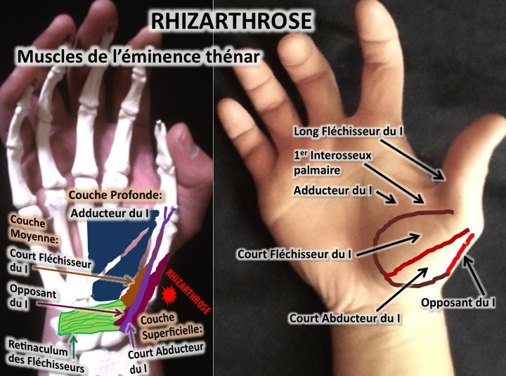 rhizarthrose osteopathie palmaire