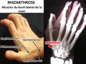 rhizarthrose ostéopathie