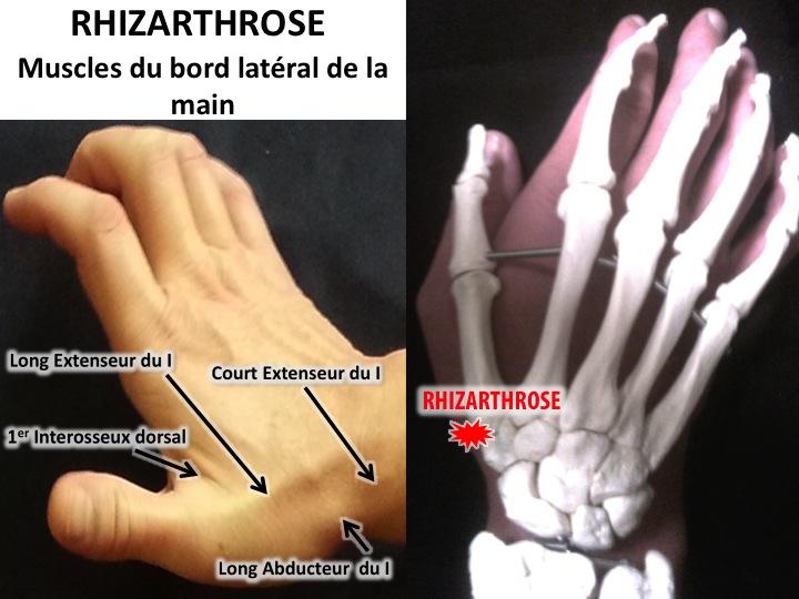 rhizarthrose osteopathie pouce