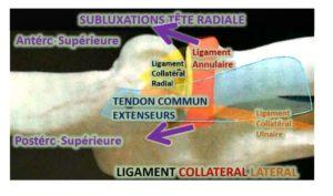 les contractures chroniques du coude subluxent la tête radiale plus fréquemment en direction Antéro-supérieure que Postéro-supérieure