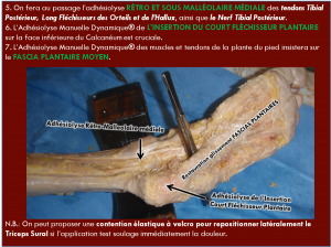 tendinite cheville osteopathie