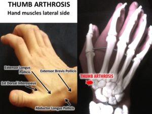 thumb arthrosis adhesiolysis